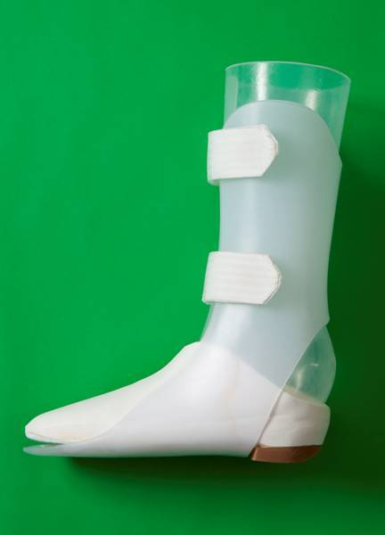 amputation and prothesis We provide patients with lower extremity prosthetic devices by using the latest technology and the highest quality of lightweight materials.